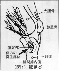 condition28