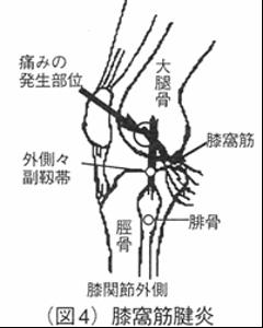 condition31