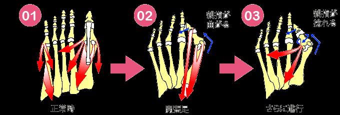condition40